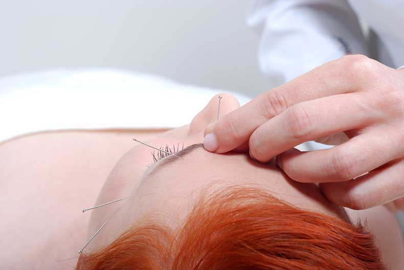 How-does-acupuncture-work-skin