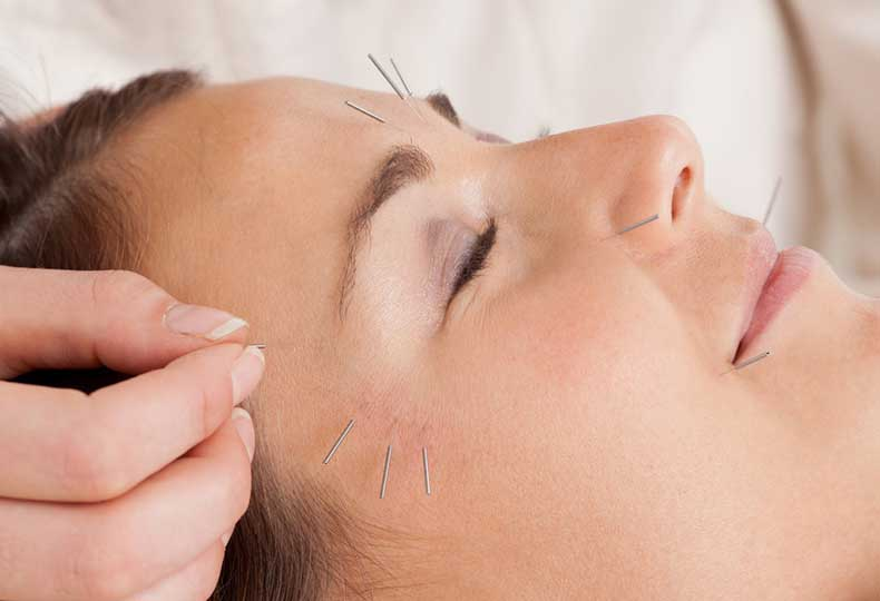 What-acupuncture-how-does-work