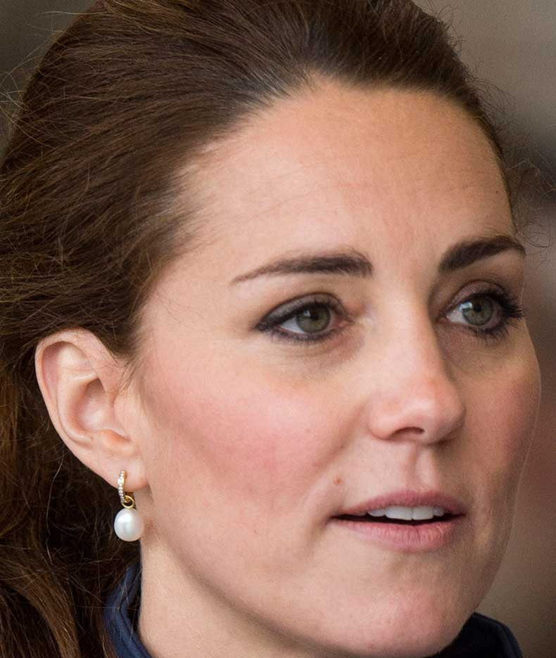 1443704960-syn-mar-1443653728-syn-elm-1443644997-kate-middleton-thin-lips