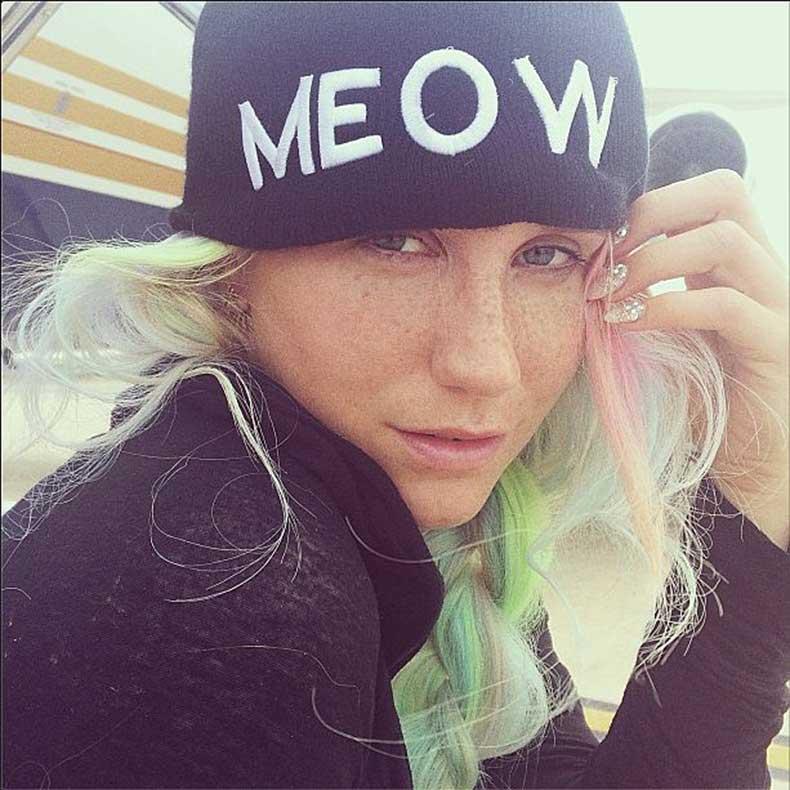 Kesha-(1)