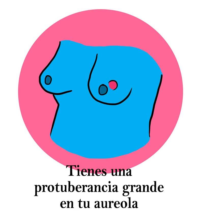 Salud-pechos07